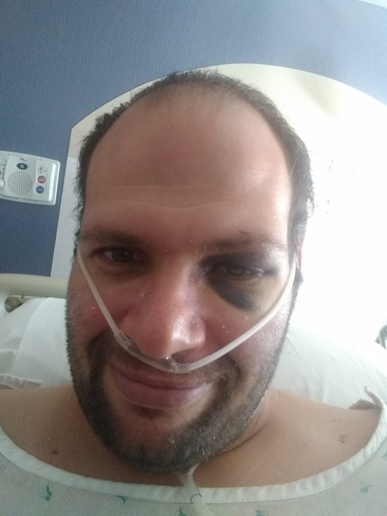 jason becker in hospital with COVID-19 black eye from falling and passing out salina ks regional hospital