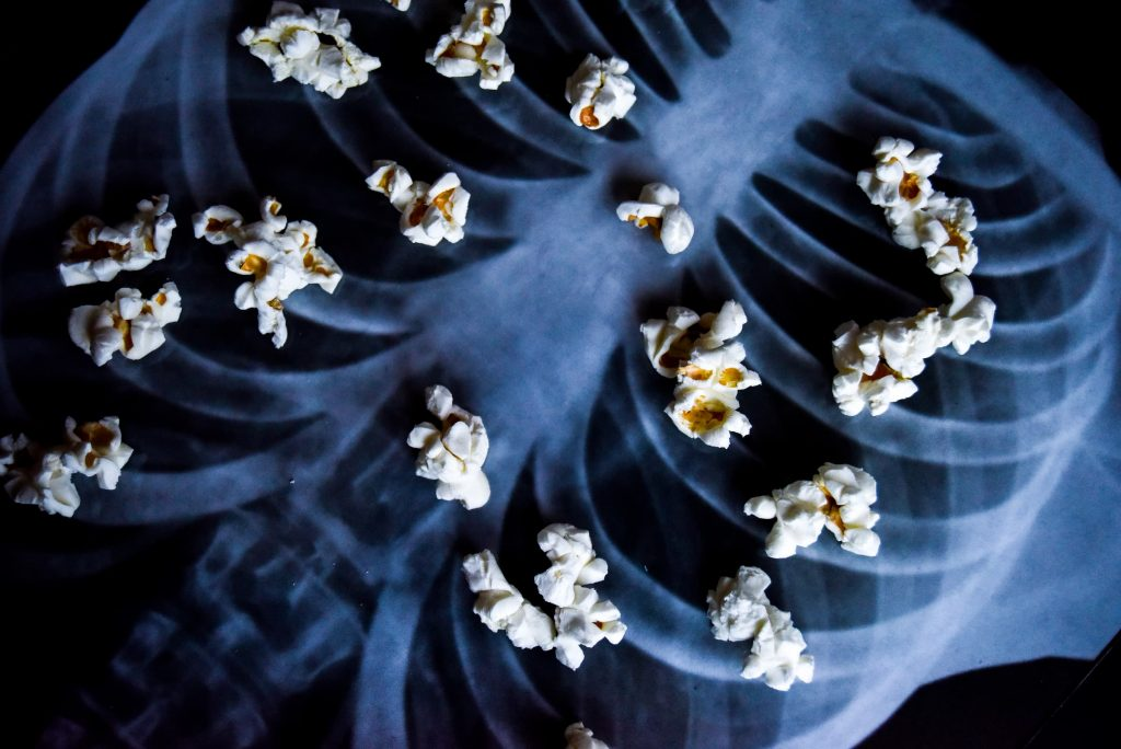 popcorn laying on top of chest x-ray to symbolize popcorn lung vaping smoking hazard when you get sick from vaping