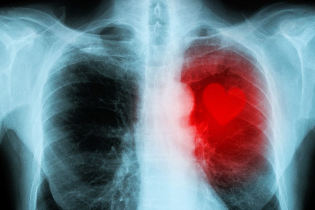 x-ray of chest with heart having red die and actual heart photo to show cardiac ct calcium scoring heart scat heart ct scan